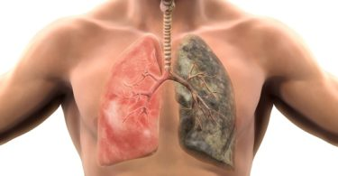 smoking lung picture